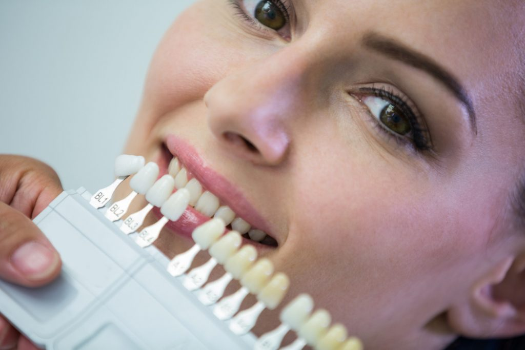 ce reprezinta tratamentul cu fatete dentare
