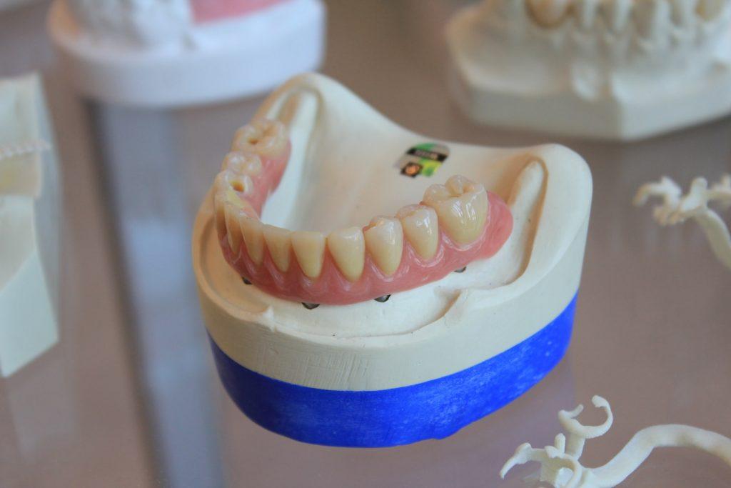 garantie implant dentar vs proteza dentara