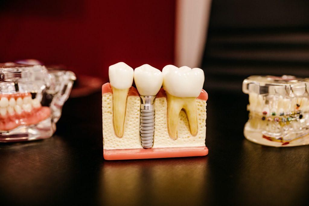 implanturi dentare vs proteza dentara