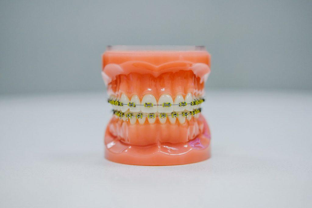 aparate dentare metalice pentru copii