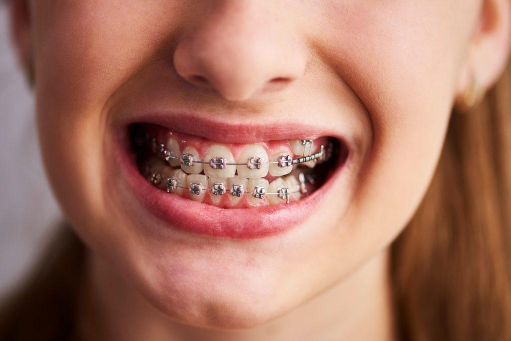 avantaje aparate dentare